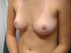 Freie Brüste